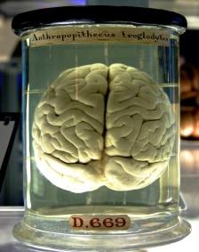 Nei. Det er feil. Hjernen er ikke alene. (Foto: Wikipedia)